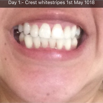 cali white real reviews teeth whitening product reviews