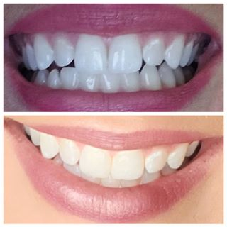 leading seller of crest whitestrips teeth whitening in dublin